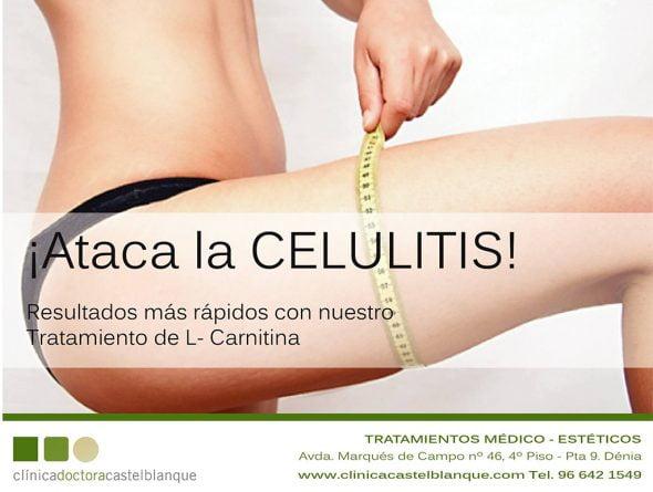 Ataca la Celulitis Clinica Castelblanque