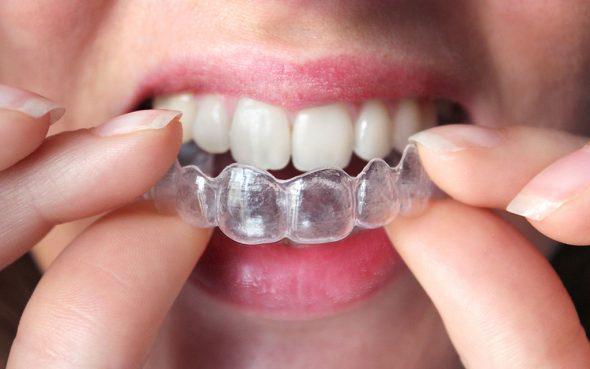 Alineadent disponible en Clínica Dental Puchol