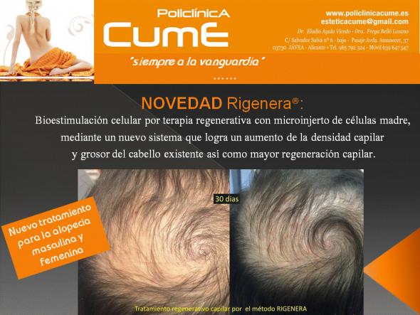 Alopecia Policlínica Cume