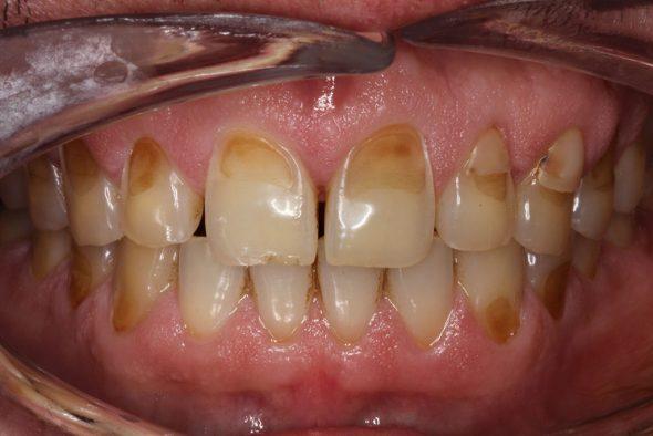 Dientes erosionados Clínica dental la Plaza
