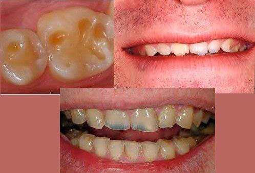 Erosión dientes Clínica Dental La Plaza