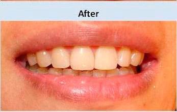 Antes y despues del tratamiento Clincia Dental La Plaza