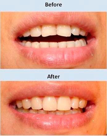 Antes y despues del tratamiento Clíncia Dental La Plaza