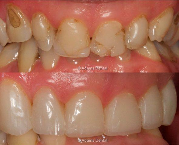 Comp bond antes y después Clínica Dental La-plaza