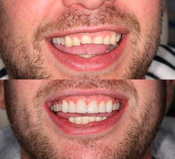 Sonrisa antes y después del tratamiento Clinica Dental La-Plaza