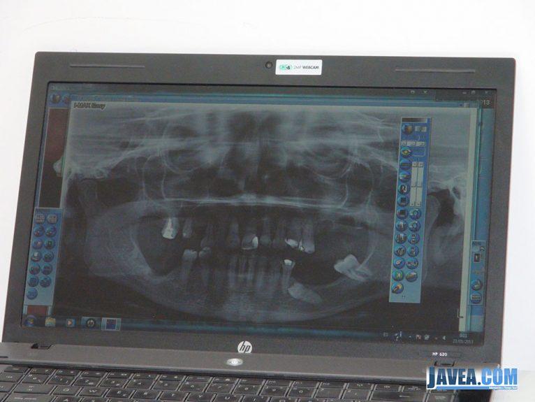 Clínica Dental Puchol Javea, radiografía dental digital