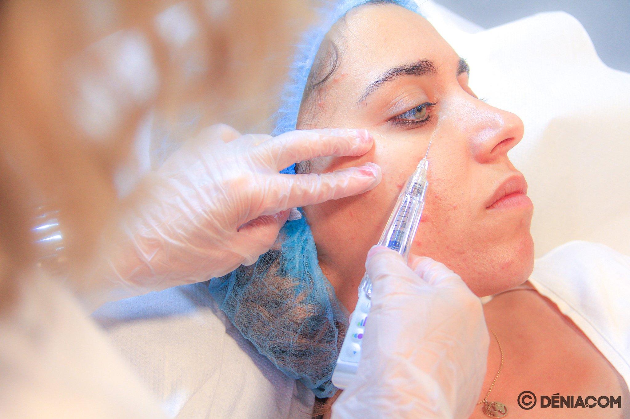 Ácido hialurónico en Dénia – Clínica Estética Castelblanque