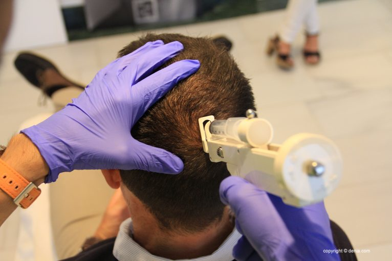 Tratamientos capilares en Dénia - Clínica Castelblanque