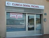 Limpieza dental en Clínica Dental Puchol