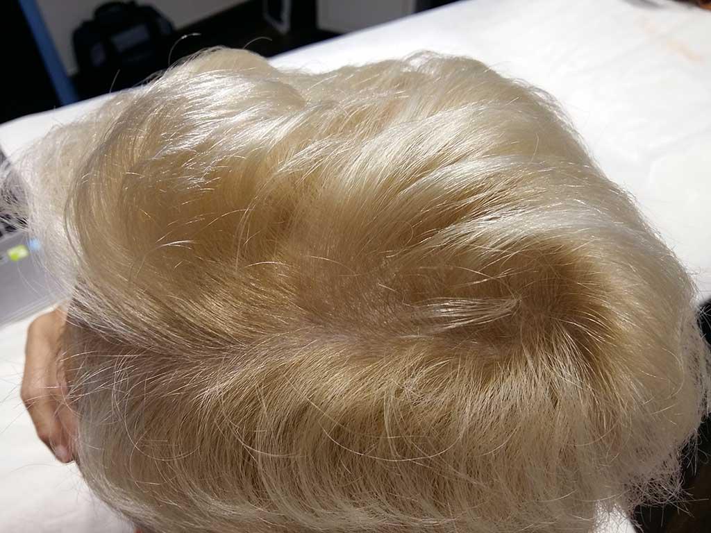 Tratamiento de la alopecia en Policlínica Cume