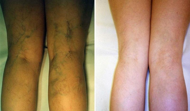 cum să tratați piciorul după operația varicoasă tinctura de castan