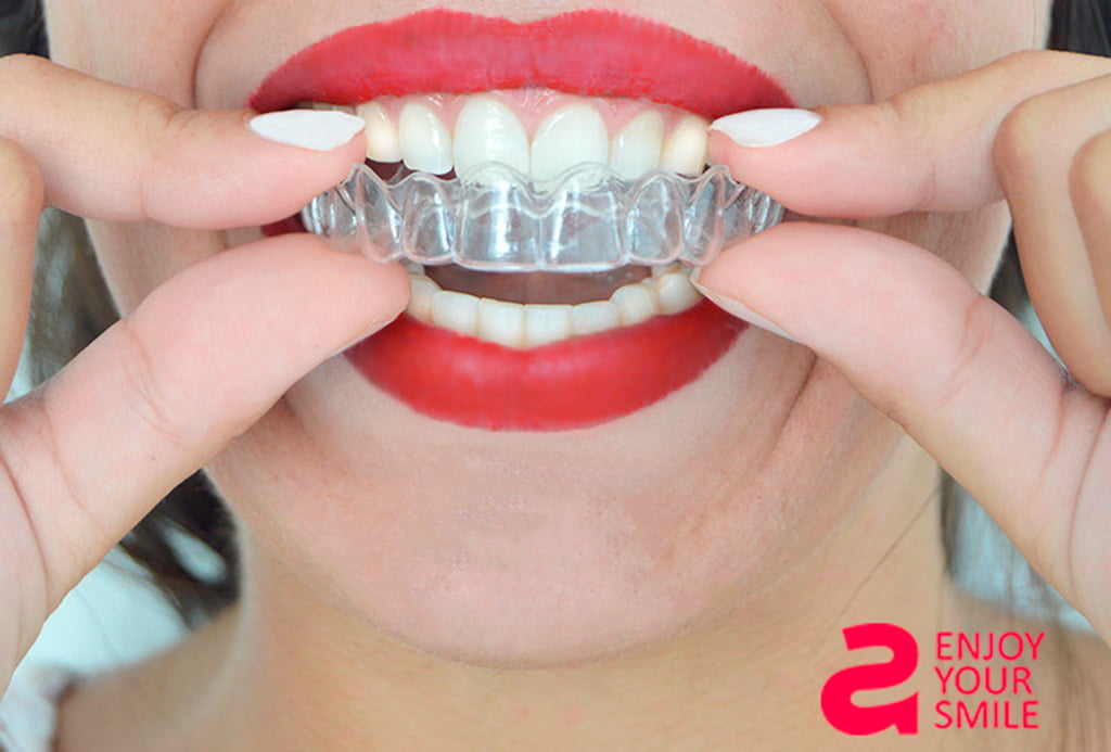 Invisible Orthodontics - Puchol Dental Clinic