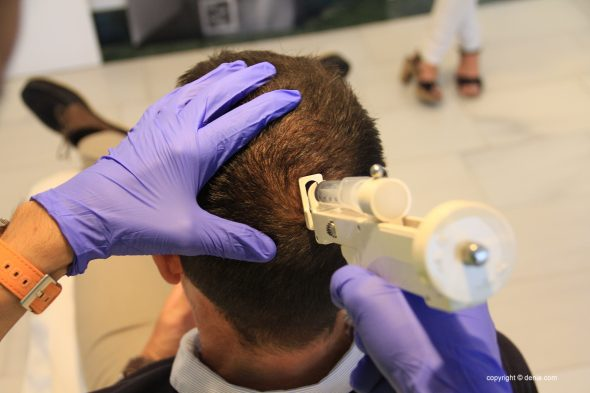 Imagen: Tratamientos capilares en Dénia - Clínica Estética Castelblanque