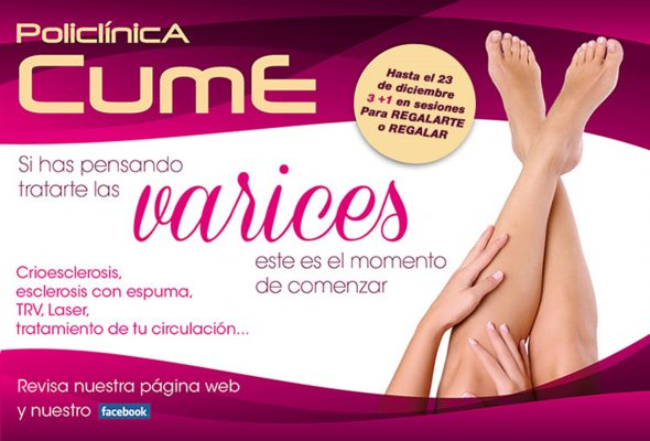 Image: Offer to improve varicose veins in CUME Polyclinic