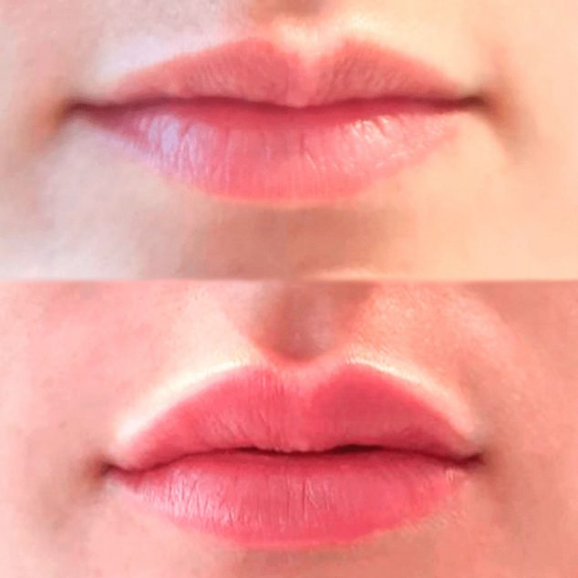 Imagen: Caso de éxito en un tratamiento de relleno de labios con ácido hialurónico - Clínica Estética Castelblanque