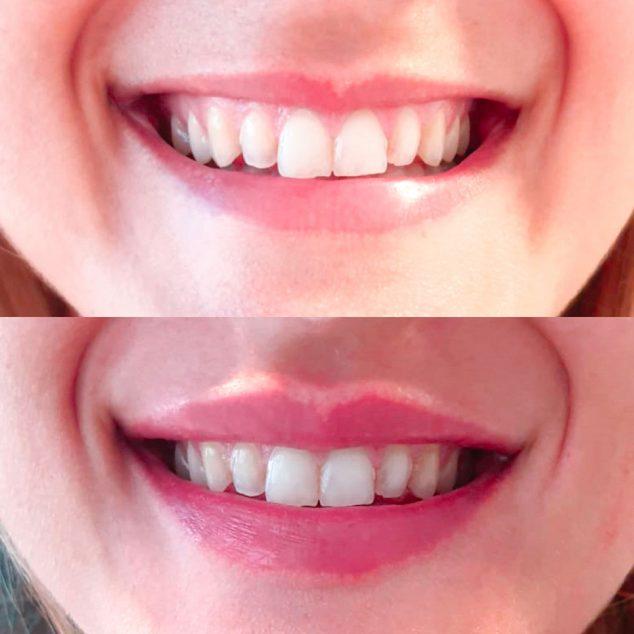 Imagen: Antes y después de un tratamiento con ácido hialurónico - Clínica Estética Castelblanque