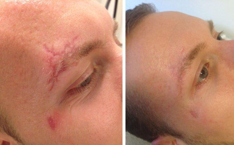 Antes y después del tratamiento de una cicatriz con láser - Clínica Estética Castelblanque