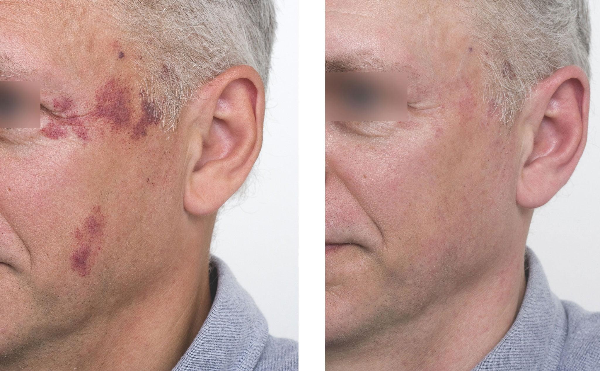 Antes y después del tratamiento de una mancha facial con láser – Clínica Estética Castelblanque