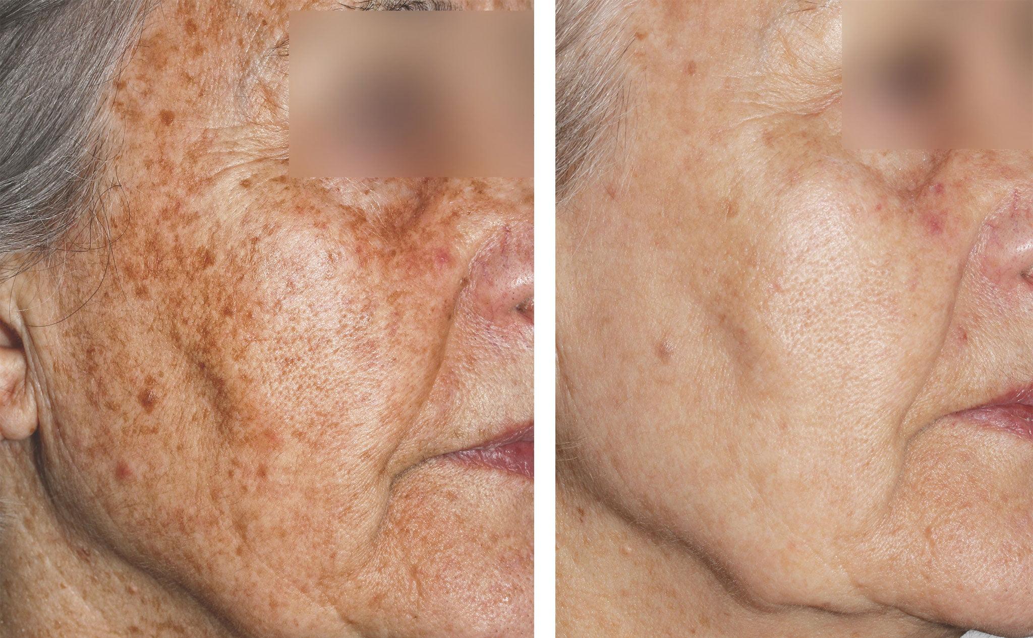 Antes y después del tratamiento de manchas faciales con láser – Clínica Estética Castelblanque