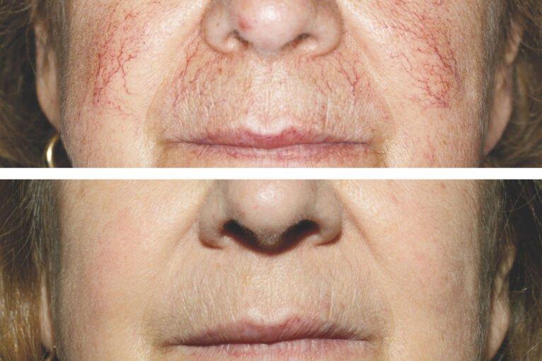 Antes y después del tratamiento de arañas vasculares con láser - Clínica Estética Castelblanque