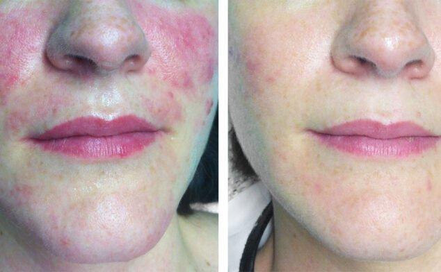 Imagen: Antes y después de un tratamiento contra las manchas y rojeces en Clínica Estética Castelblanque
