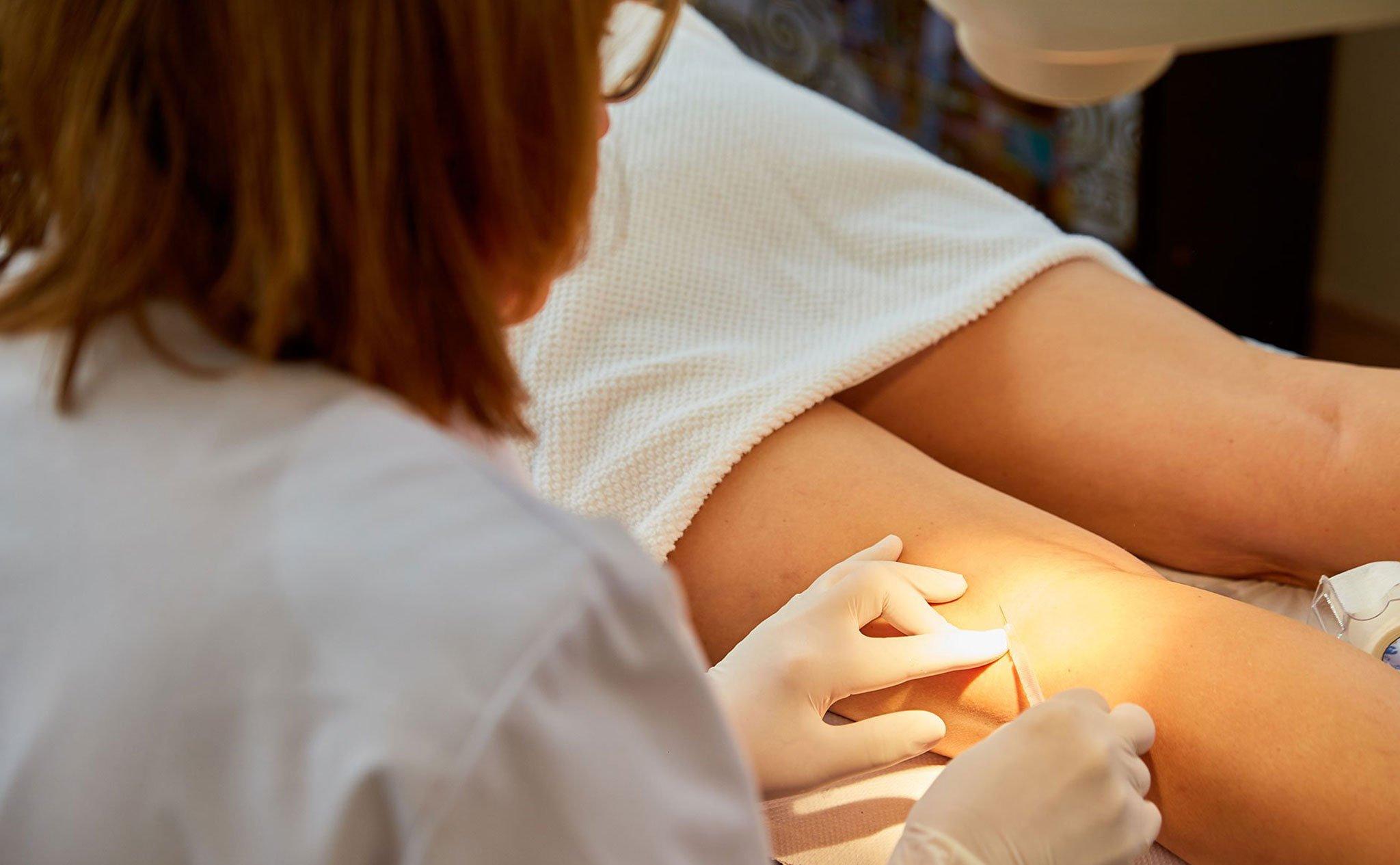 Tratamiento de esclerosis contra las varices – Policlínica CUME