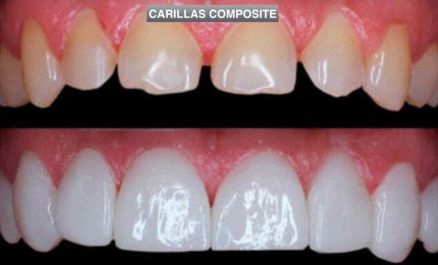 Imagen: Carillas Composite - Clinica Dental Puchol