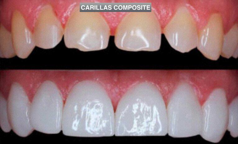 Carillas Composite - Clinica Dental Puchol